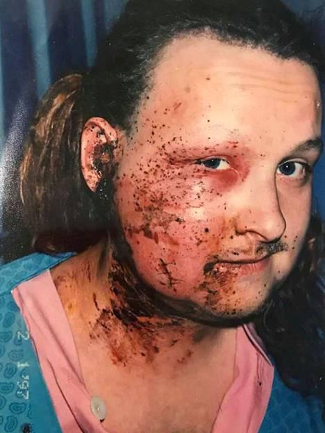 Manu Soininmäki kuvattuna kaksi päivää onnettomuuden jälkeen.