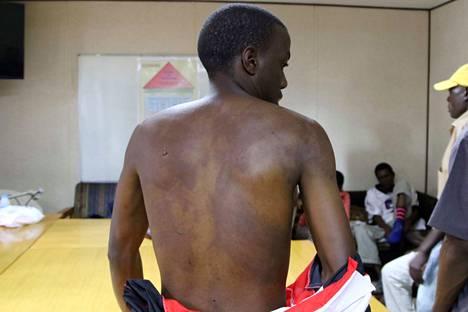 Poliisin ja armeijan väkivallan uhriksi joutunut mies kävi hoidattamassa ruhjeitaan klinikalla Hararessa viime viikolla.