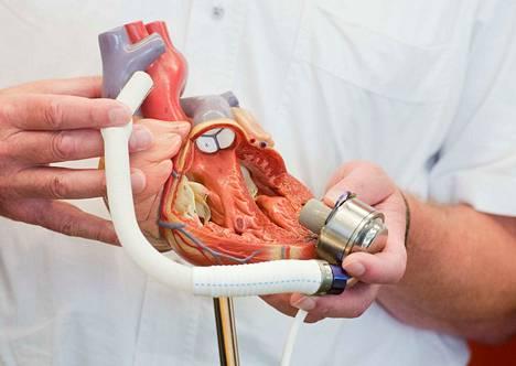 """Tiedossa ei ole, voiko tämä keinotekoinen sydän """"särkyä"""". Se asennettiin ihmiseen heinäkuussa 2014 Hannoverin lääketieteellisessä yliopistossa Saksassa."""