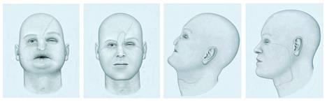Sairaalassa tehdyistä havainnepiirroksista selviää, että ensimmäisen kasvojensiirtopotilaan kasvot olivat painuneet keskeltä. Potilas sai kuolleelta potilaalta kasvojen alaosan.