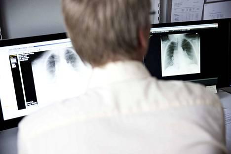 Tupakanpoltto on suurin syy keuhkosyöpään sairastumisen taustalla. Keuhkosyöpä lisääntyy miehiä suhteellisesti enemmän myös naisilla, jotka eivät tupakoi. Kuvituskuva.