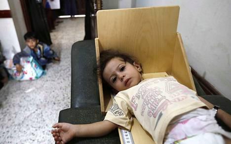 Lapsi kävi terveystarkastuksessa Jemenin Sanaassa viime viikolla. Arvioiden mukaan 10,3 miljoonaa lasta kärsii aliravitsemuksesta Jemenissä pitkittyneen konfliktin takia. He ovat heikoimmassa asemassa pandemian aiheuttamassa nälänhädässä.