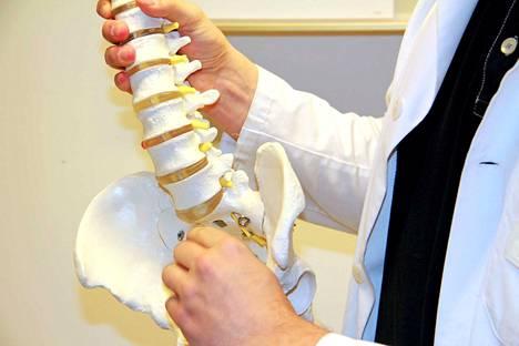 Yleisin iskiasoireen syy on nikamien välilevyn rappeutumisesta johtuva pullistuma, joka mekaanisesti puristaa selkäydinhermoa tai aiheuttaa paikallisen reaktion,