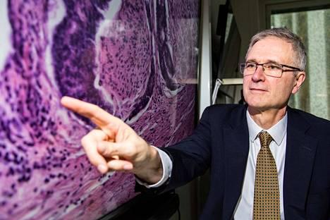 Tampereen yliopiston syöpätutkijan Steve Bovan kokenut silmä näkee eturauhasen kudosleikkeestä tehdystä digitaalipatologiakuvasta pienimmätkin yksityiskohdat ja sairastuneet solut. Kuvassa läpileikkaus eturauhasen imusuonesta, jossa on syöpäsoluja.
