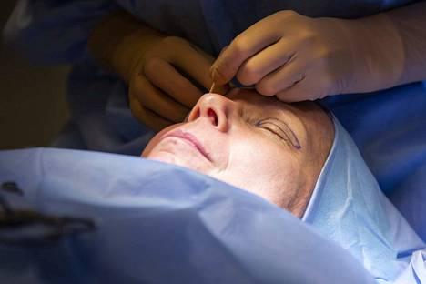 Yläluomileikkauksessa poistettava ihoalue piirretään silmäluomelle. Arpi jää yläluomen vakoon, joten sitä ei arkielämässä huomaa.