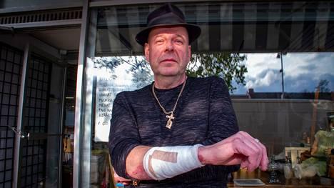 Heikki Hemminki suojasi kasvojaan oikealla kädellä, mihin tuli syvät purujäljet.